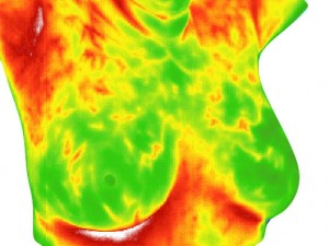Thermography Services - The Midwives Of New Jersey