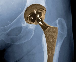 Know About Metal on Metal Hip Implants