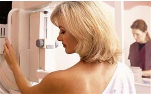brest cancer screening