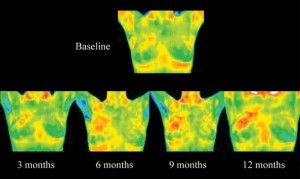 What About Thermography