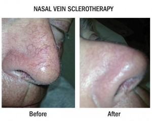 Hand Veins & Facial Veins