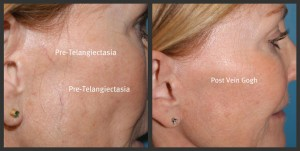 What is the Difference Between Cosmetic Vein Problems
