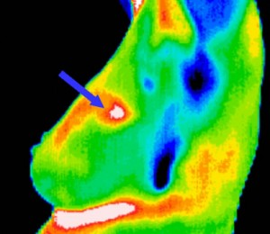Thermography Non Invasive Radiation Free Imaging Procedure Southwest Florida S Health And Wellness Magazine