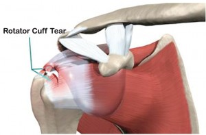 Rotator Cuff Injury Saraota