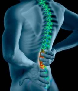 Low Back Pain Sarasota