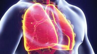 Photo of Understanding COPD