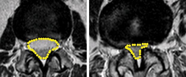 Photo of Lumbar Spinal Stenosis