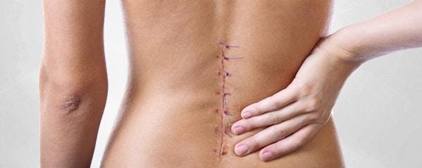 Photo of Failed Back Surgery Syndrome