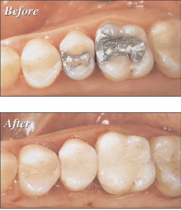 Photo of All in one Dental Visit with CEREC