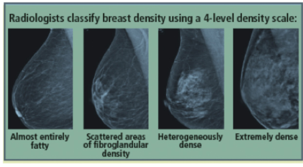 Photo of What you should know about dense breast