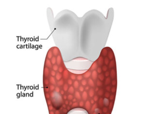 Do You Have A Thyroid Disorder