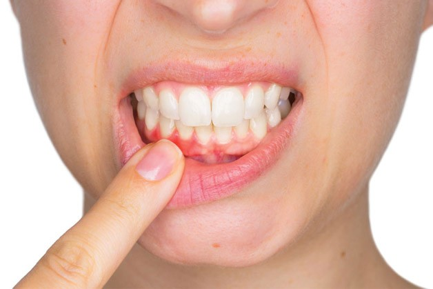 Photo of Periodontal Disease and Bone Loss: Bone Grafting and Implants Offer Multiple Benefits