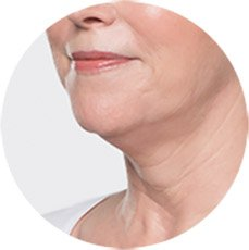 Photo of Are You Noticing More Fullness Under Your Chin?