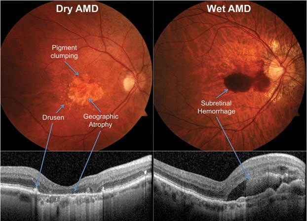 Photo of Diagnosing Macular Degeneration Early is Critical to Saving Sight