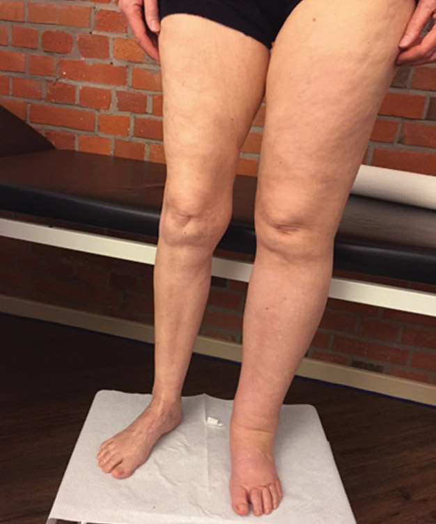 Photo of Lipedema and Lymphedema Are 2 Different Disorders That Sometimes Interconnect: What You Should Know
