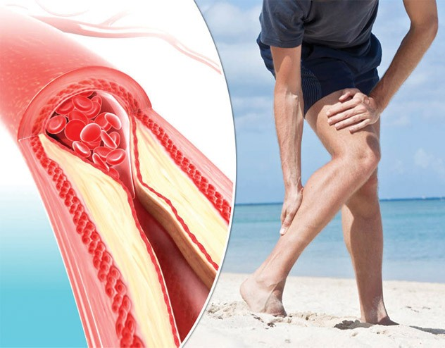 Photo of Many People Ignore the Symptoms of Peripheral Arterial Disease, Which Can Be FATAL