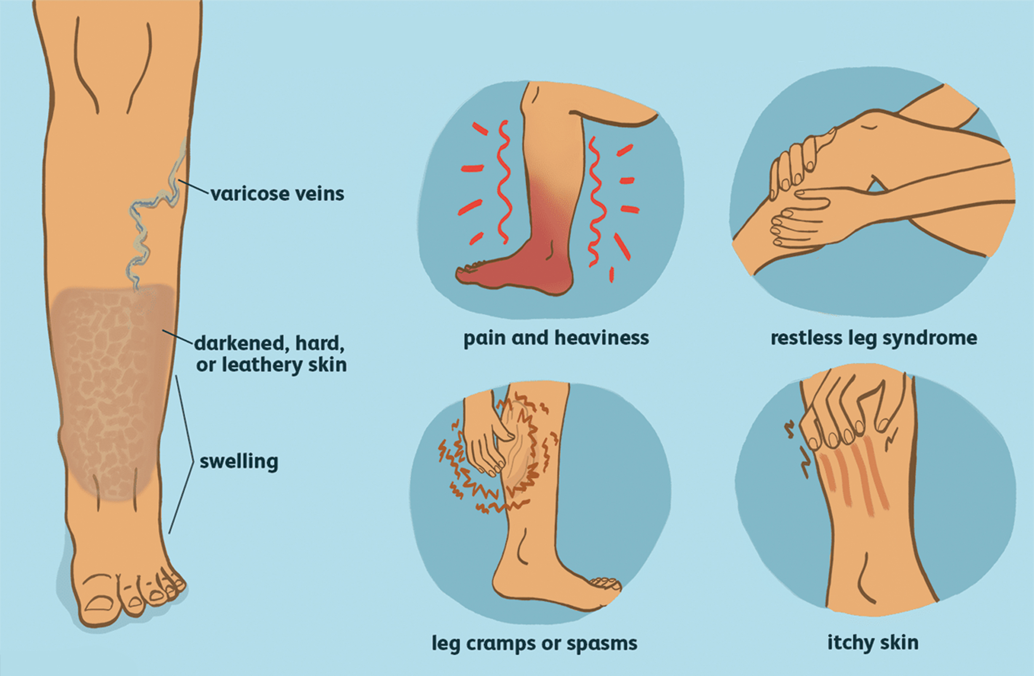 Photo of CAN TREATING YOUR VEINS be the Answer to your Pain?