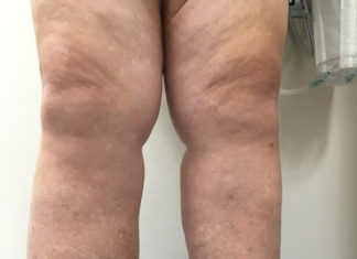 Cancer Treatment and Lymphedema