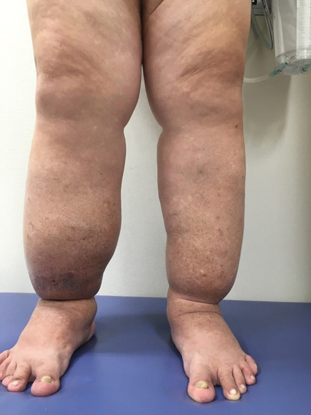 Photo of Cancer Treatment and Lymphedema: What You Need to Know