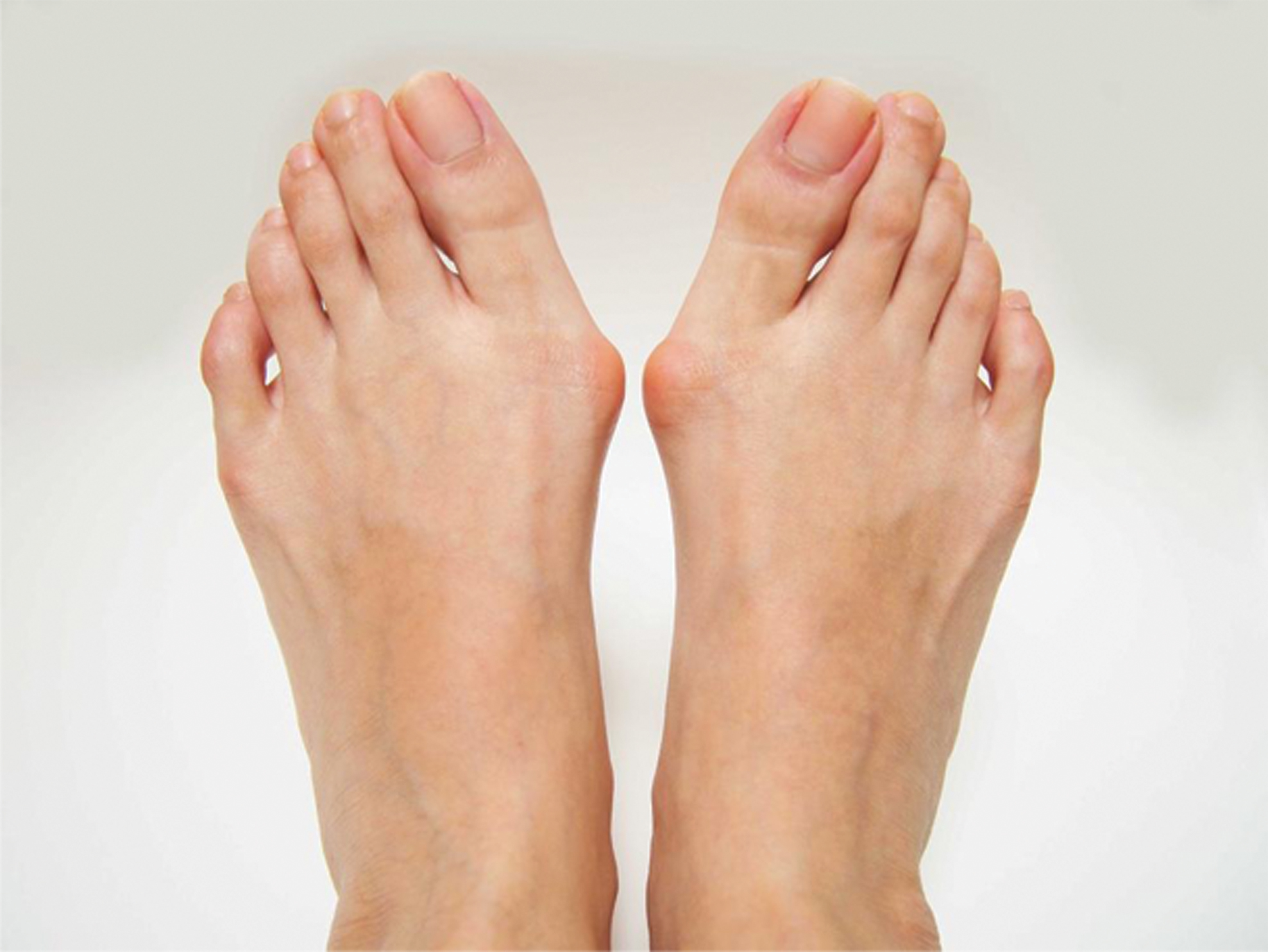 Photo of Don't Ignore Painful, Swollen Bunions: You Have Multiple Options to Treat Your Feet