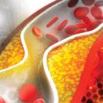 Methods for Lowering Cholesterol