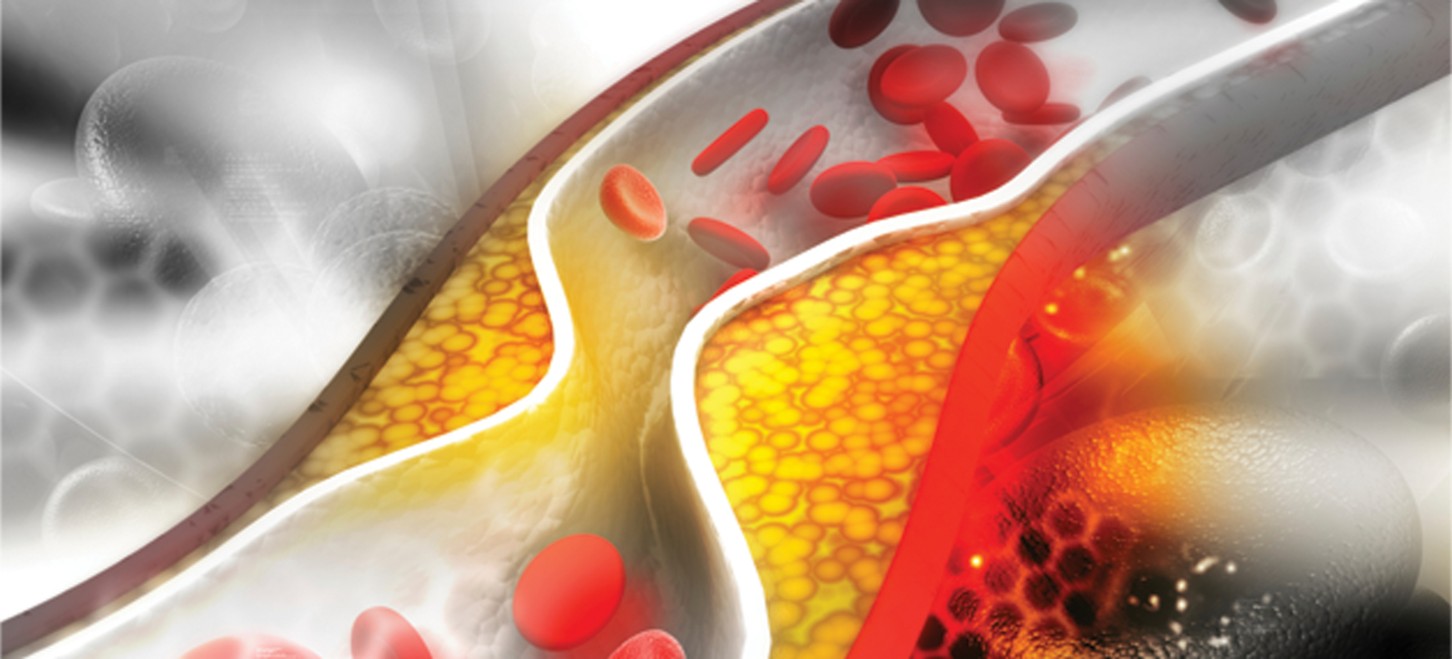 Photo of Heart Health: Advanced Methods for Lowering Cholesterol and Reducing Plaque