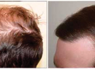 Hair Loss is an Emotional Experience! What You Can Do
