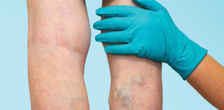 How to Prevent and Manage Varicose Veins