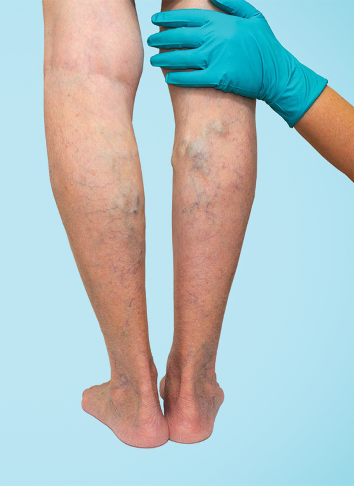 Photo of How to Prevent and Manage Varicose Veins
