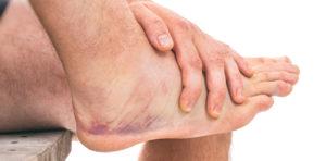 Five Foot Problems Men Should Never Ignore