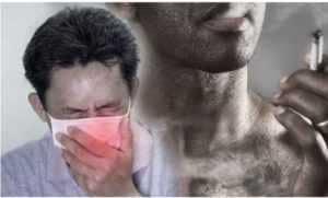 SMOKING AND CORONAVIRUS SUSCEPTIBILITY