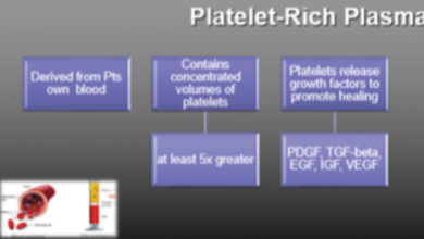 Photo of What is Platelet-Rich Plasma-PRP