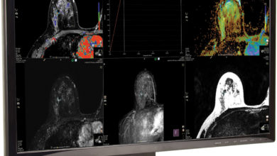 Photo of Breast MRI Can Be a Powerful Tool in Fight Against Cancer