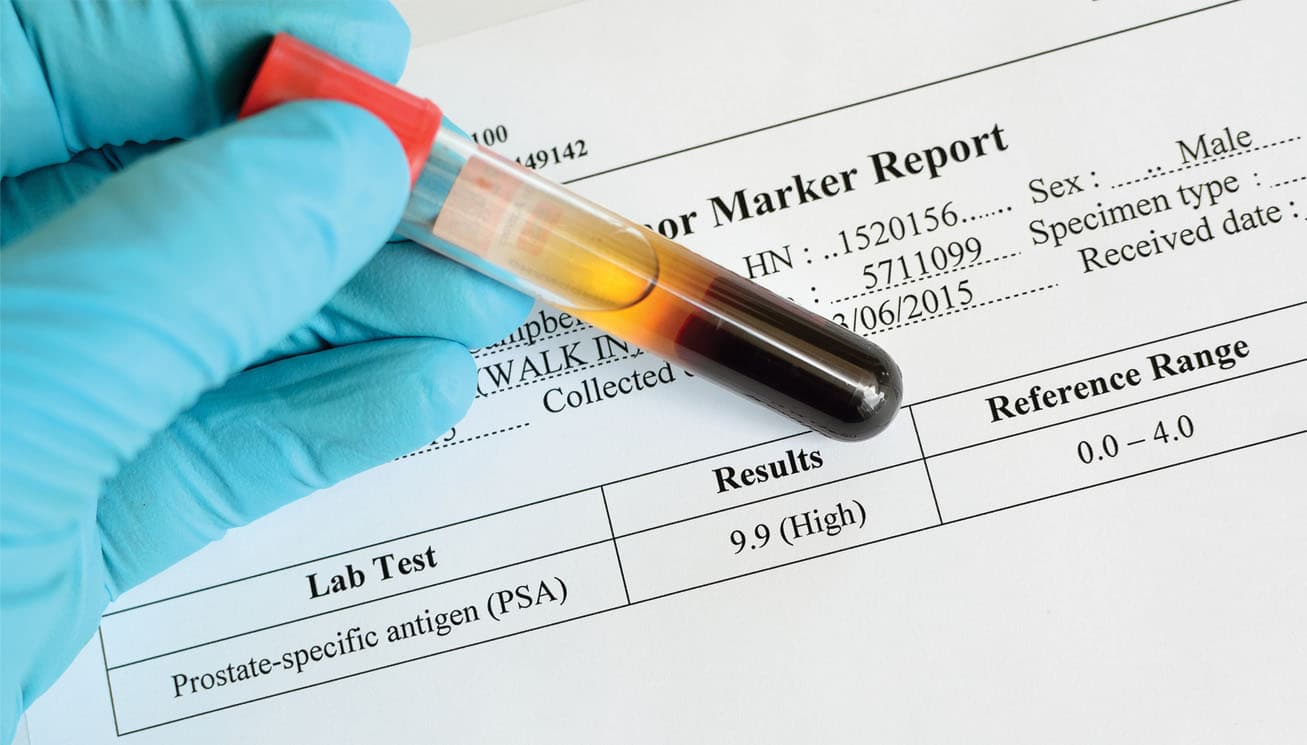 Diagnosing Prostate Cancer: PSA Level Blood Tests are Essential