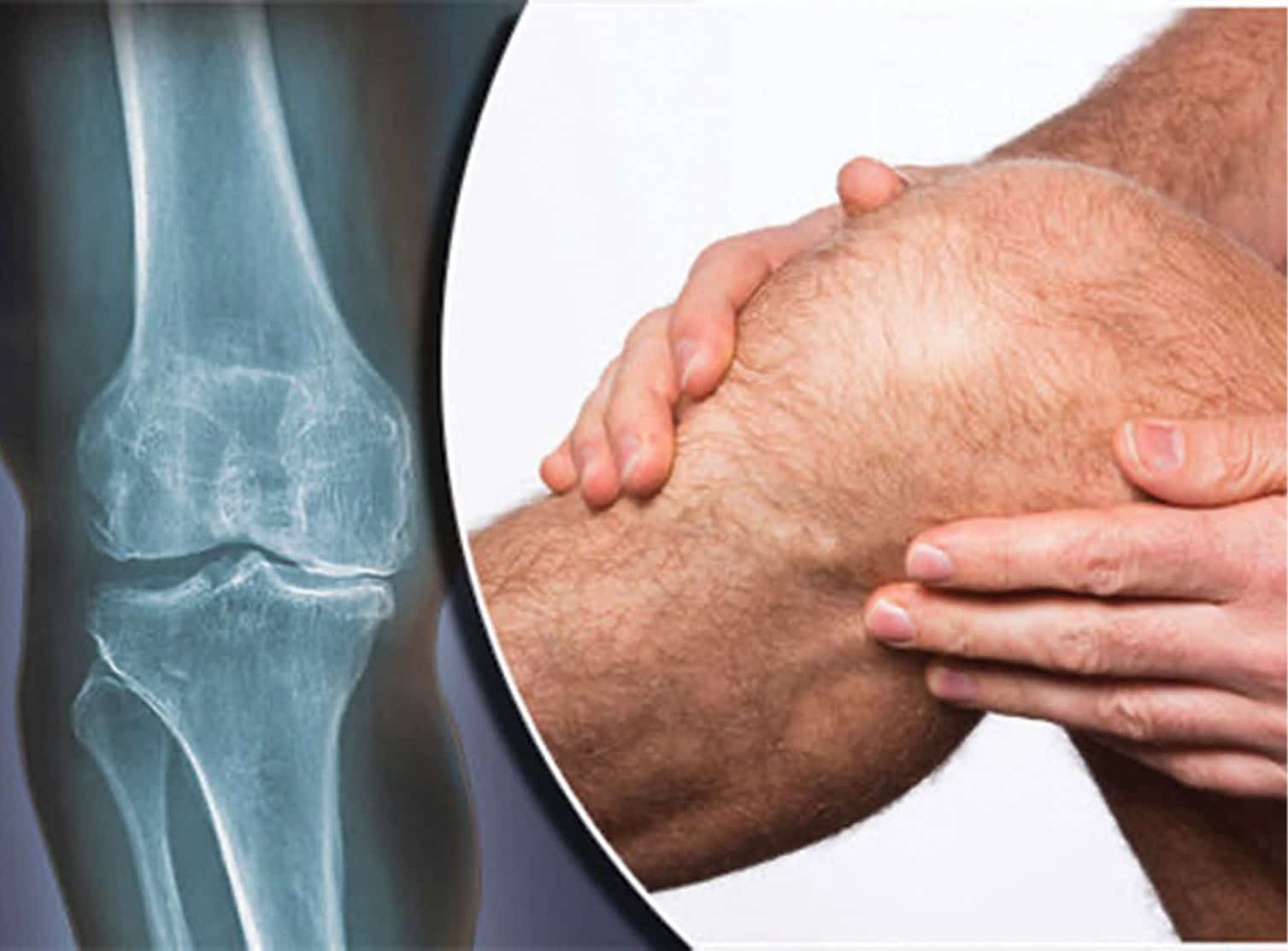 Osteoarthritis of the Knee: Alternatives to Surgery