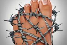 Photo of Learn How You Can Find Relief From the Debilitating Pain of Peripheral Neuropathy without Addictive Drugs