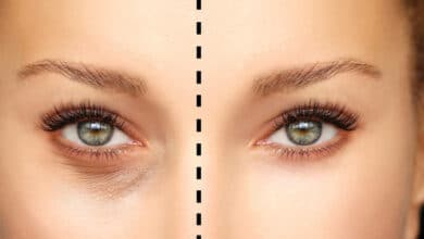 Photo of Prendiville Facial Plastic Surgery Joins Quigley Eye Specialists