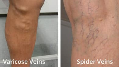 Photo of Spider & Varicose Veins: Are They Superficial Issues or More Serious?