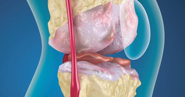 Understanding Regenerative Medicine for Knee Pain
