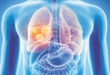 Radiology Regional Provides Low Dose CT Lung Cancer Screenings