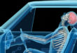 Accidents Often Cause Whiplash, But The Long Term Effects Can Be Widespread