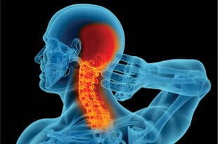 CERVICAL SPINE, NECK PAIN