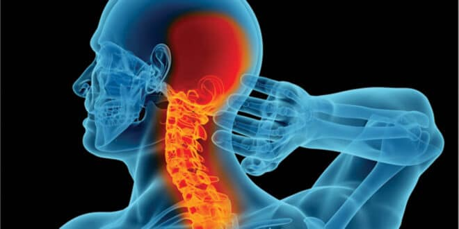 CERVICAL SPINE, NECK PAIN: WHAT YOU SHOULD KNOW ABOUT THE CAUSE AND YOUR TREATMENT OPTIONS