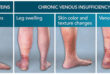 Do You Have Varicose Veins or Venous Insufficiency